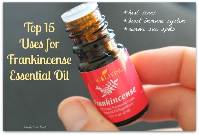 Uses for Frankincense