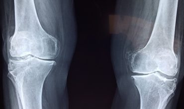 Xray photo of knee bones